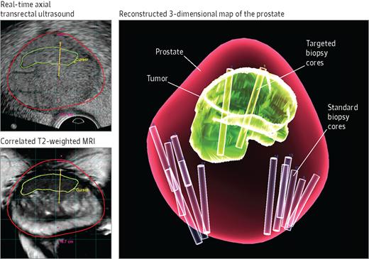 multiparametric mri prostate cpt code